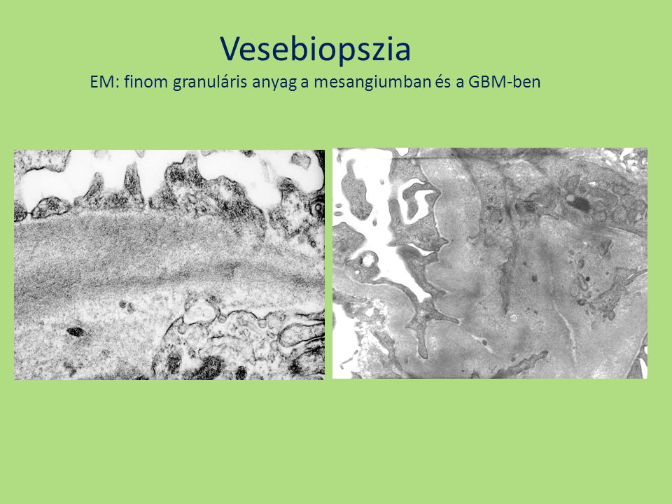 Vesebiopszia EM: finom granuláris anyag a mesangiumban és a GBM-ben