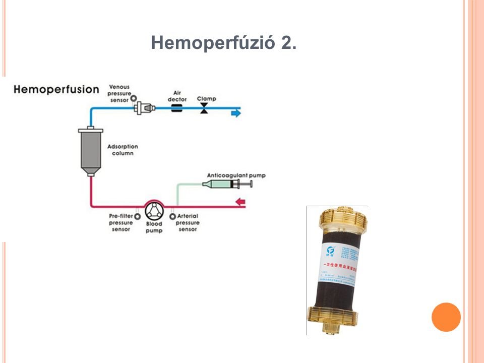 Hemoperfúzió 2.