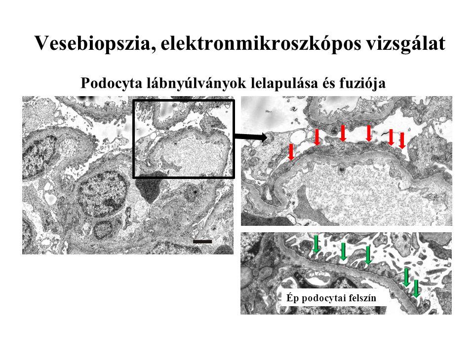 Vesebiopszia, elektronmikroszkópos vizsgálat