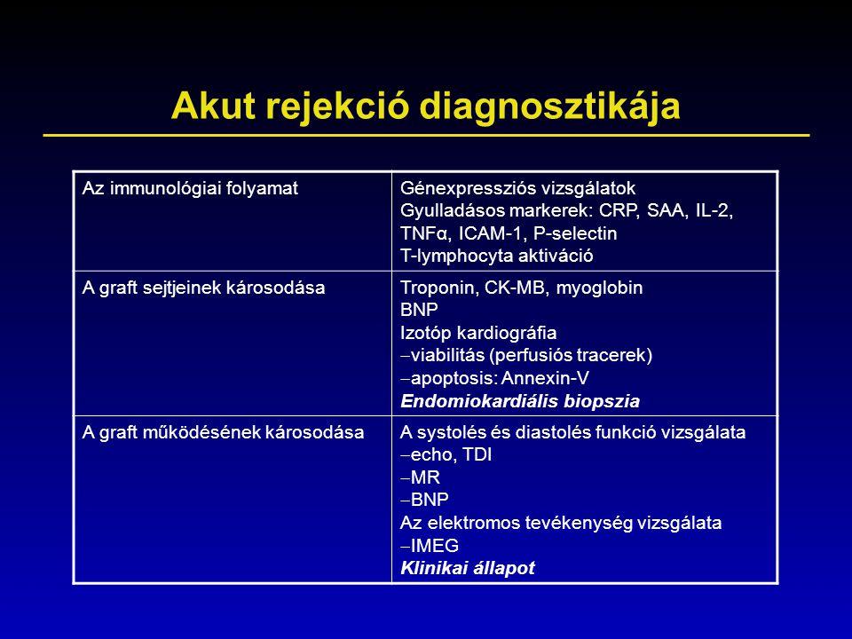 Akut rejekció diagnosztikája