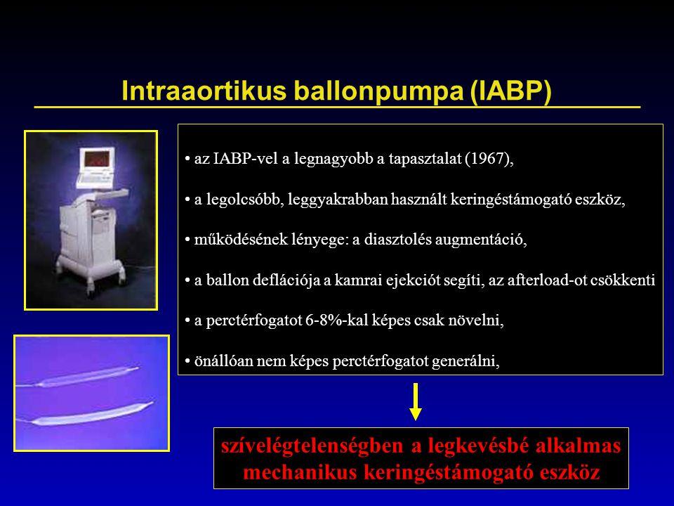 Intraaortikus ballonpumpa (IABP)