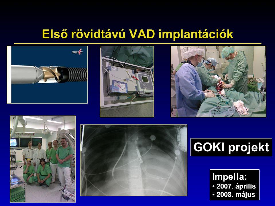 Első rövidtávú VAD implantációk