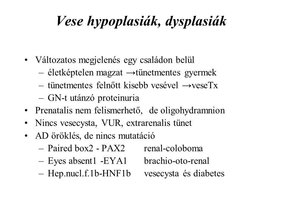 Vese hypoplasiák, dysplasiák