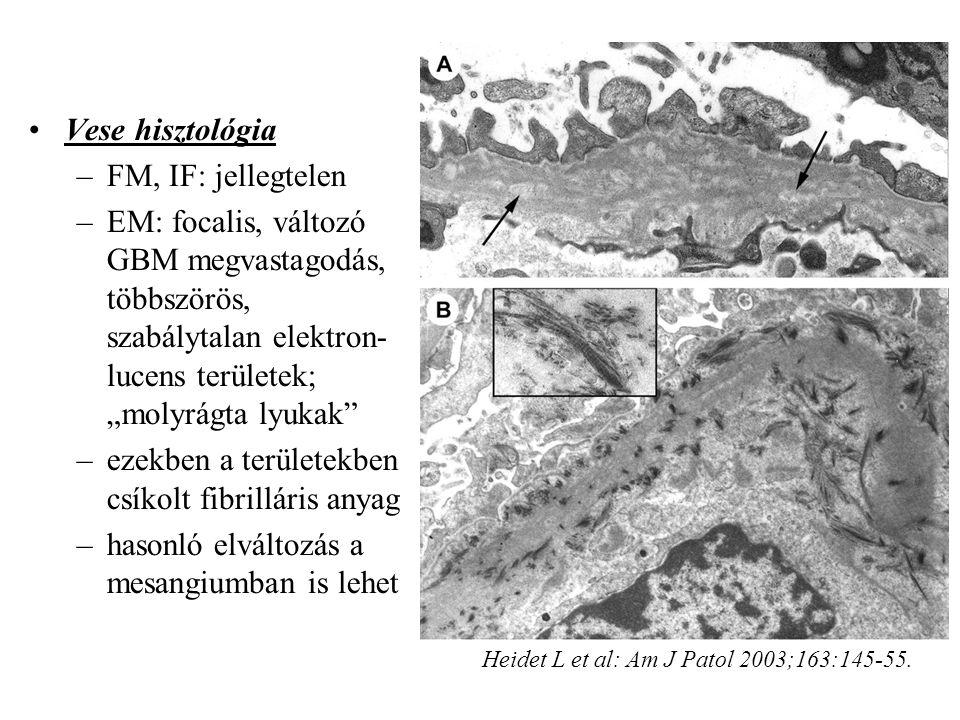 ezekben a területekben csíkolt fibrilláris anyag