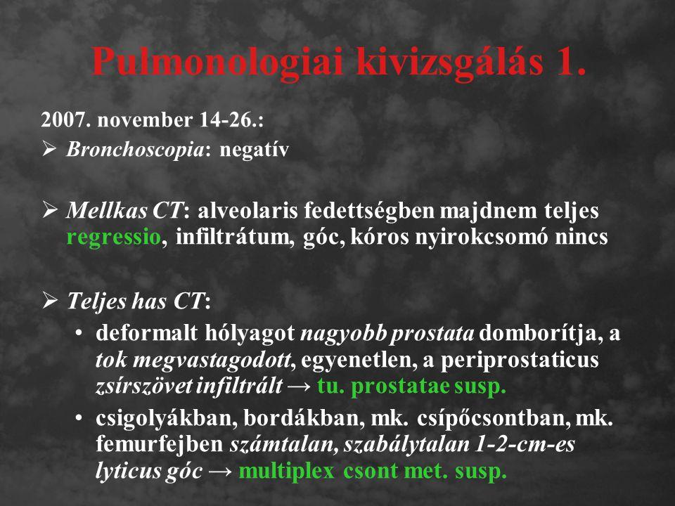 Pulmonologiai kivizsgálás 1.