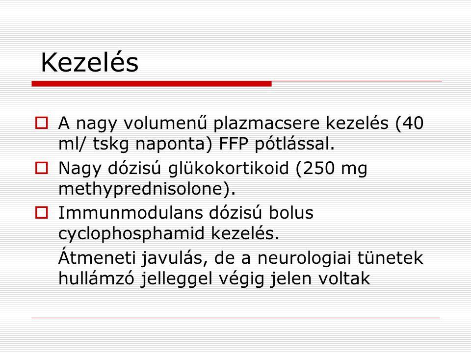 Kezelés A nagy volumenű plazmacsere kezelés (40 ml/ tskg naponta) FFP pótlással. Nagy dózisú glükokortikoid (250 mg methyprednisolone).