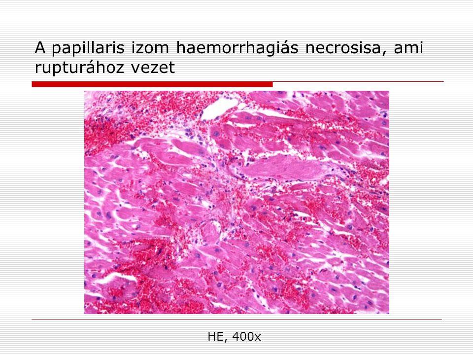 A papillaris izom haemorrhagiás necrosisa, ami rupturához vezet