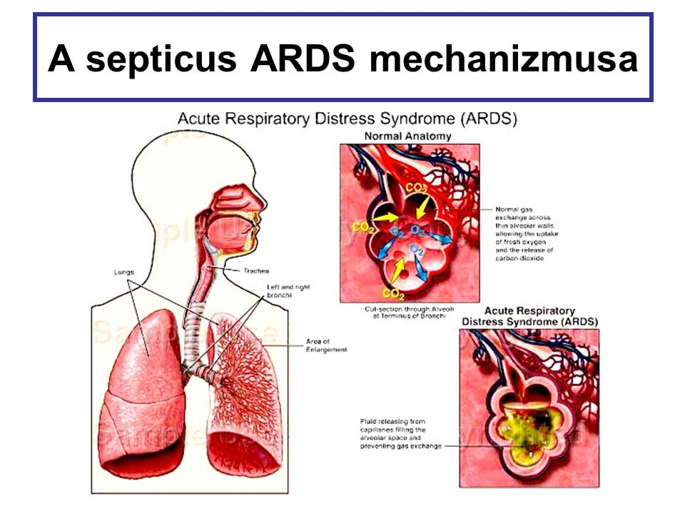 A septicus ARDS mechanizmusa