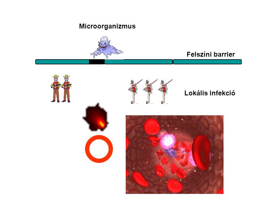 Microorganizmus Felszíni barrier Lokális infekció Bejutás az érpályába
