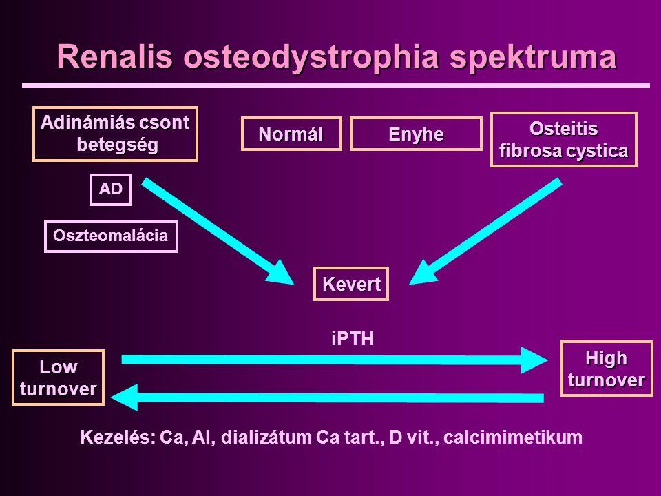 Renalis osteodystrophia spektruma
