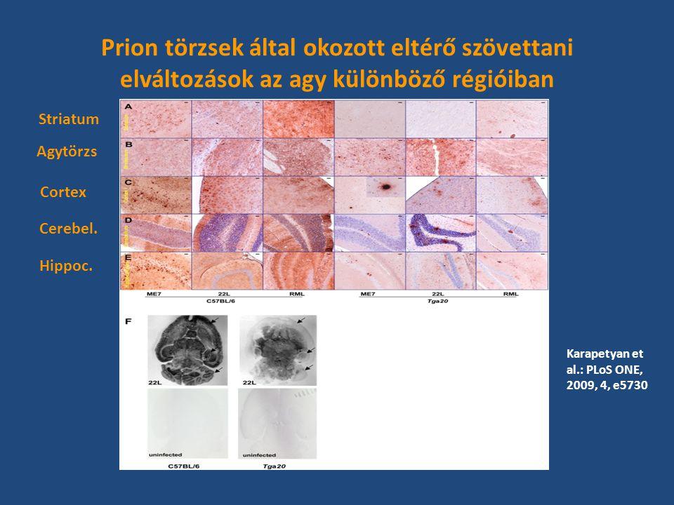 Prion törzsek által okozott eltérő szövettani elváltozások az agy különböző régióiban