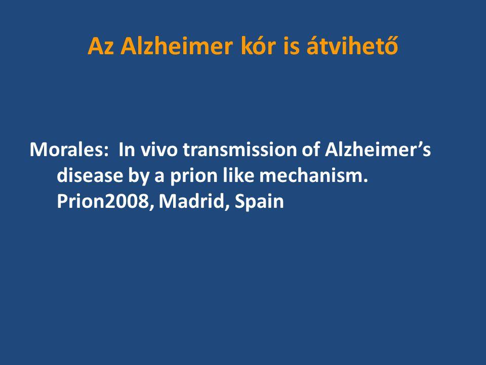 Az Alzheimer kór is átvihető