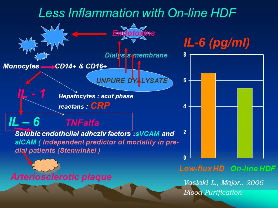 Less Inflammation with On-line HDF