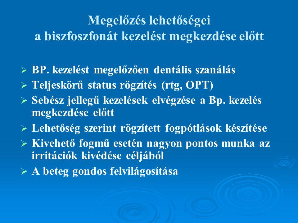 Megelőzés lehetőségei a biszfoszfonát kezelést megkezdése előtt