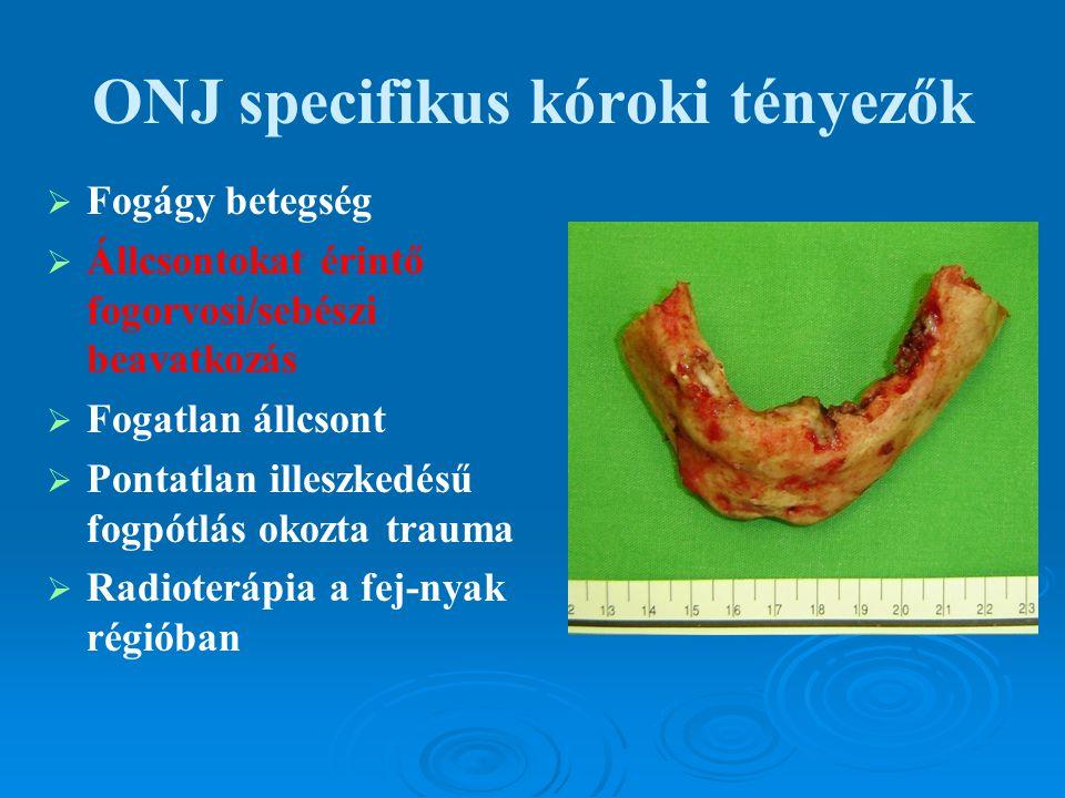 ONJ specifikus kóroki tényezők