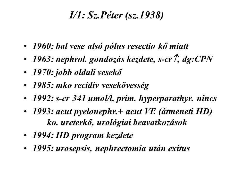 I/1: Sz.Péter (sz.1938) 1960: bal vese alsó pólus resectio kő miatt