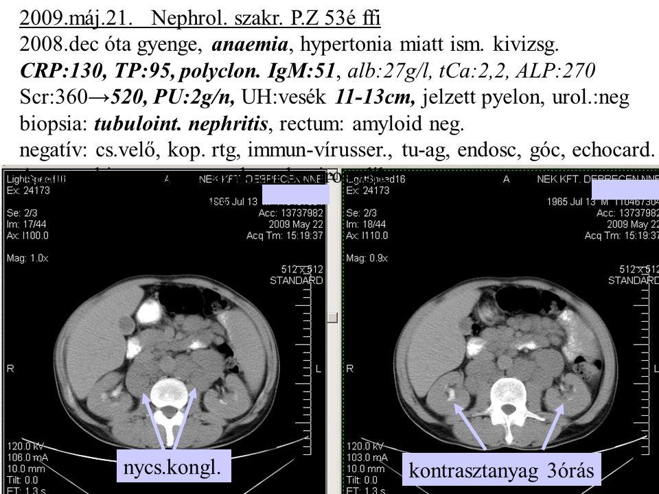 2009.máj.21. Nephrol. szakr. P.Z 53é ffi