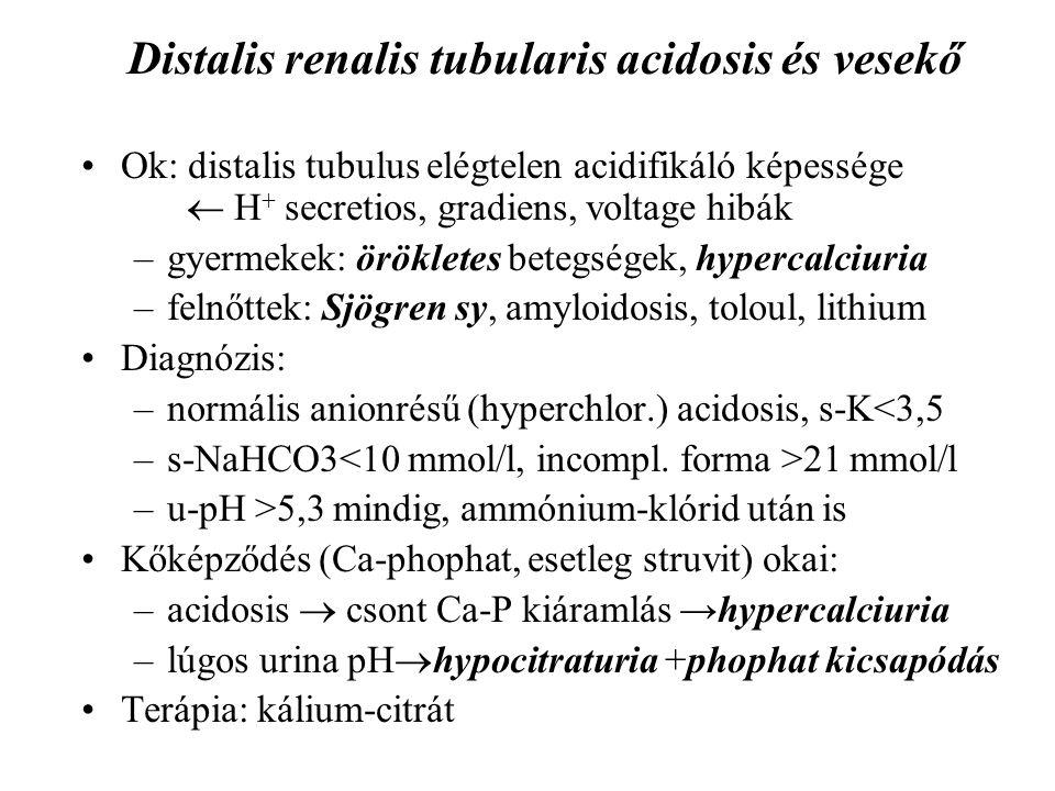 Distalis renalis tubularis acidosis és vesekő
