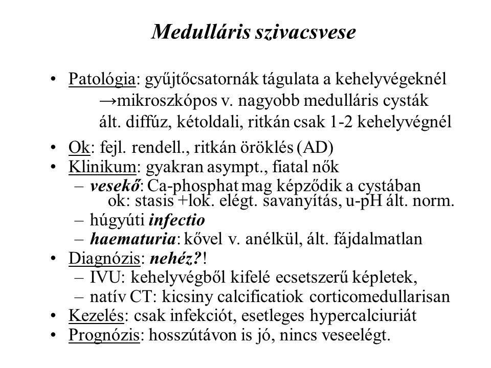 Medulláris szivacsvese
