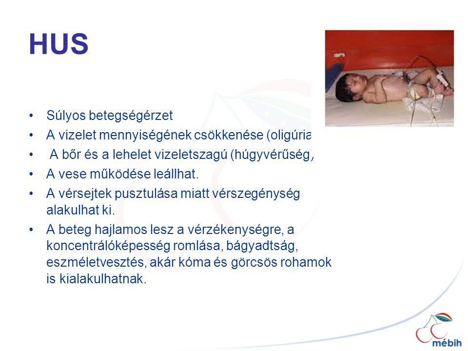 HUS Súlyos betegségérzet A vizelet mennyiségének csökkenése (oligúria)