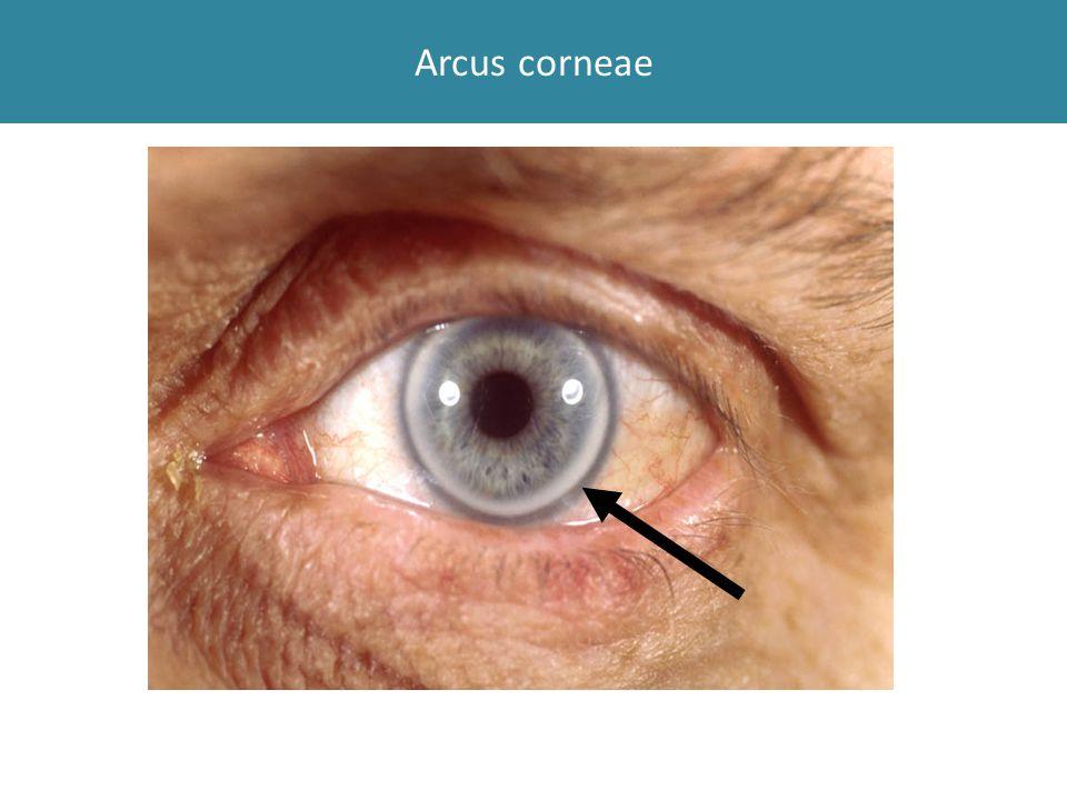 Arcus corneae