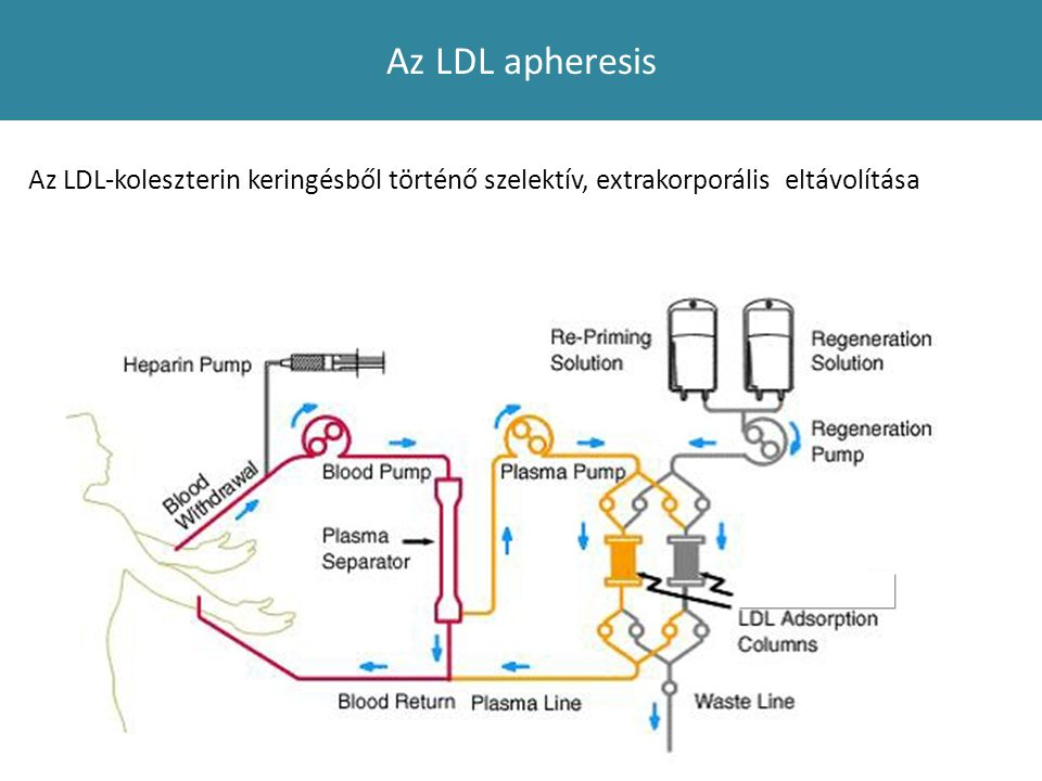 Az LDL apheresis Az LDL-koleszterin keringésből történő szelektív, extrakorporális eltávolítása
