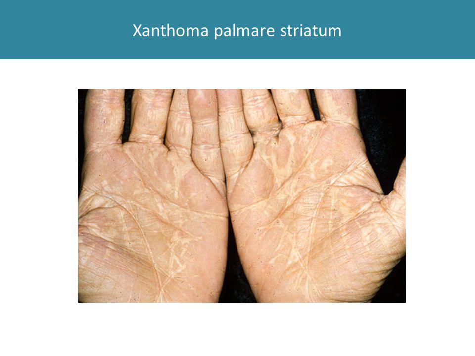 Xanthoma palmare striatum
