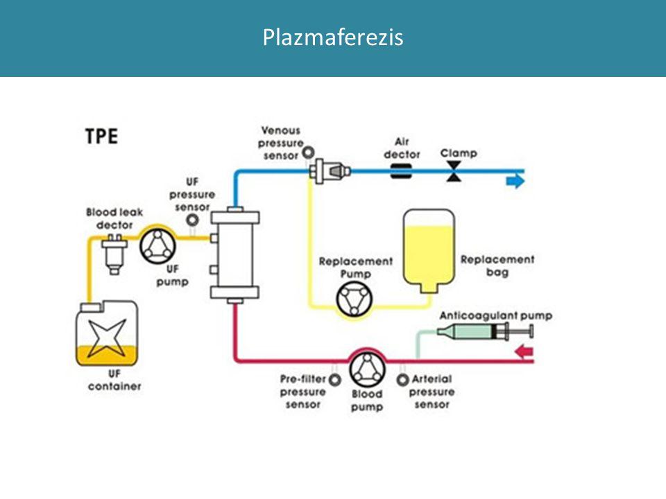 Plazmaferezis