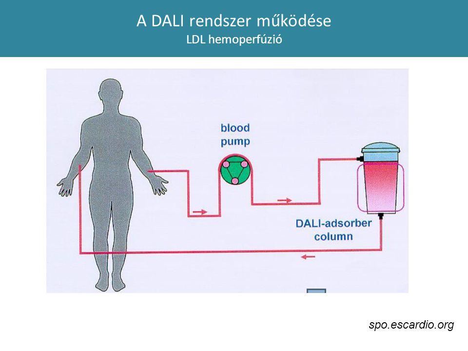 A DALI rendszer működése LDL hemoperfúzió