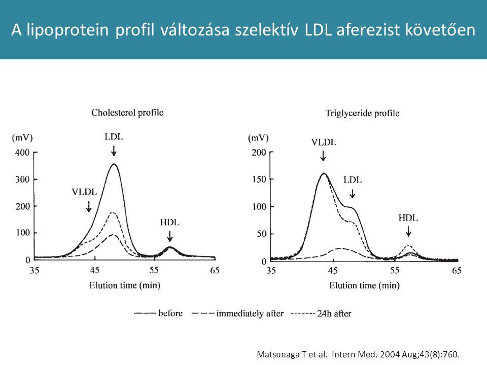 A lipoprotein profil változása szelektív LDL aferezist követően