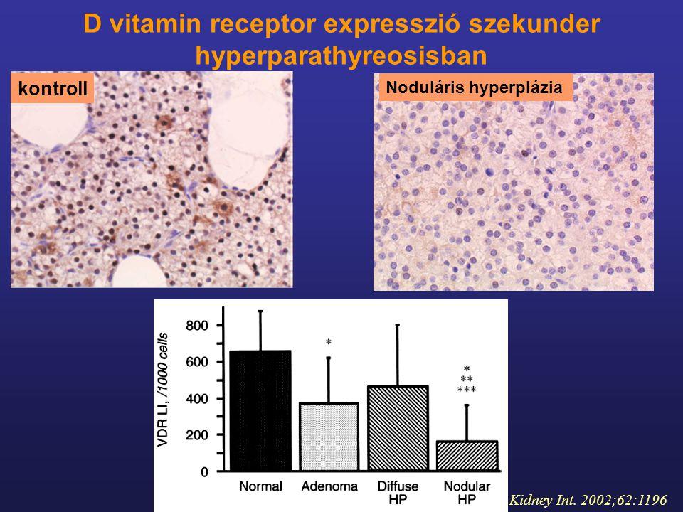 D vitamin receptor expresszió szekunder hyperparathyreosisban
