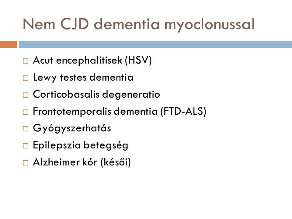 Nem CJD dementia myoclonussal
