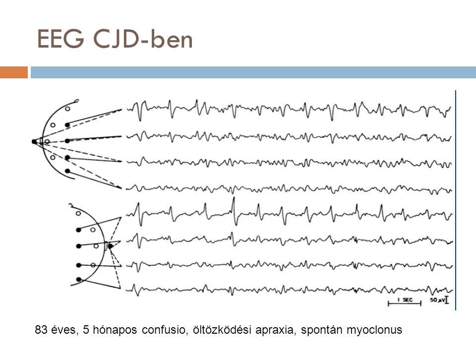 EEG CJD-ben 83 éves, 5 hónapos confusio, öltözködési apraxia, spontán myoclonus