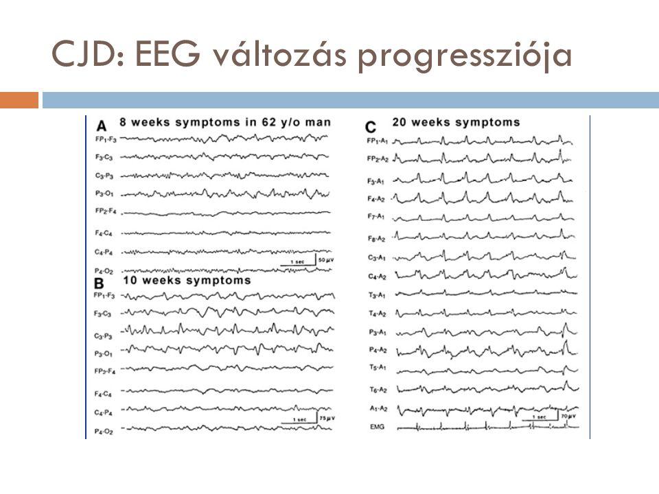 CJD: EEG változás progressziója