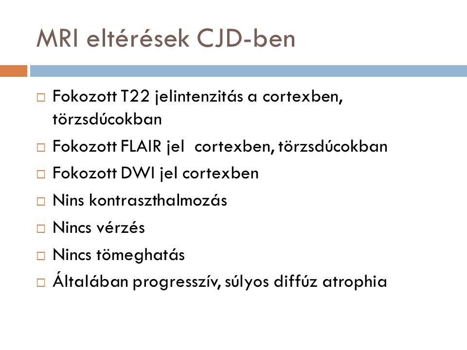 MRI eltérések CJD-ben Fokozott T22 jelintenzitás a cortexben, törzsdúcokban. Fokozott FLAIR jel cortexben, törzsdúcokban.