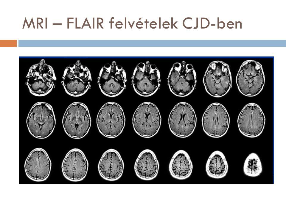 MRI – FLAIR felvételek CJD-ben