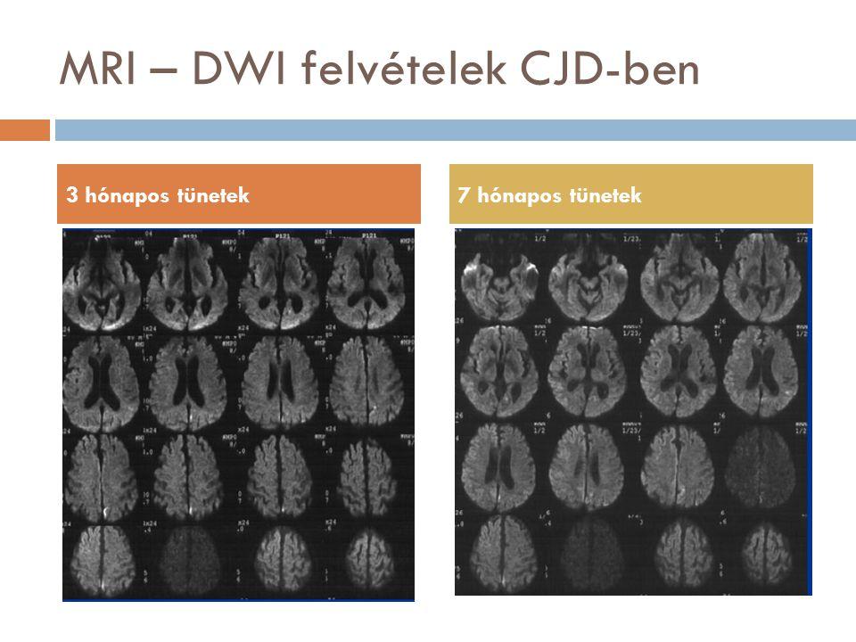 MRI – DWI felvételek CJD-ben