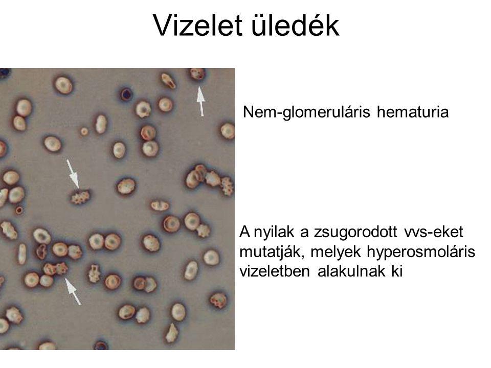 Vizelet üledék Nem-glomeruláris hematuria
