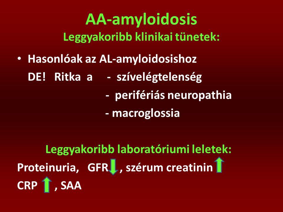 AA-amyloidosis Leggyakoribb klinikai tünetek: