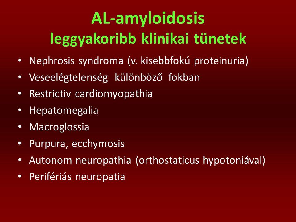 AL-amyloidosis leggyakoribb klinikai tünetek