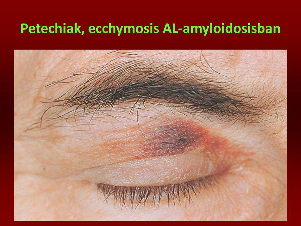 Petechiak, ecchymosis AL-amyloidosisban