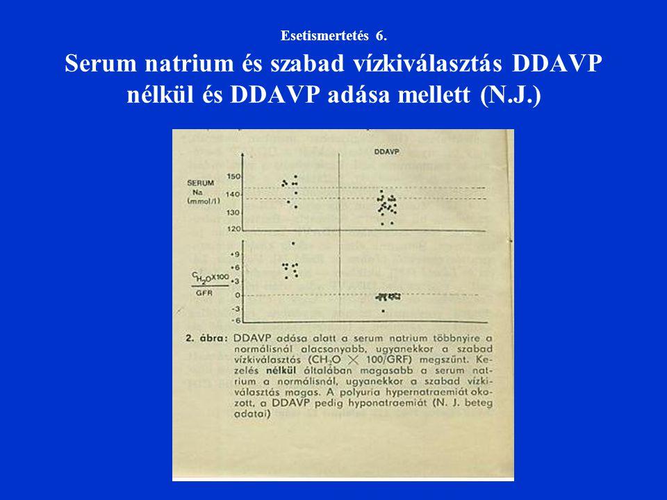 Esetismertetés 6. Serum natrium és szabad vízkiválasztás DDAVP nélkül és DDAVP adása mellett (N.J.)