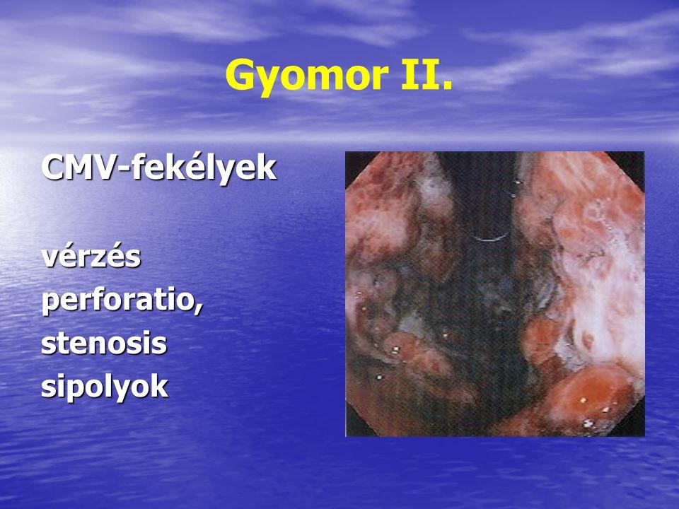 Gyomor II. CMV-fekélyek vérzés perforatio, stenosis sipolyok
