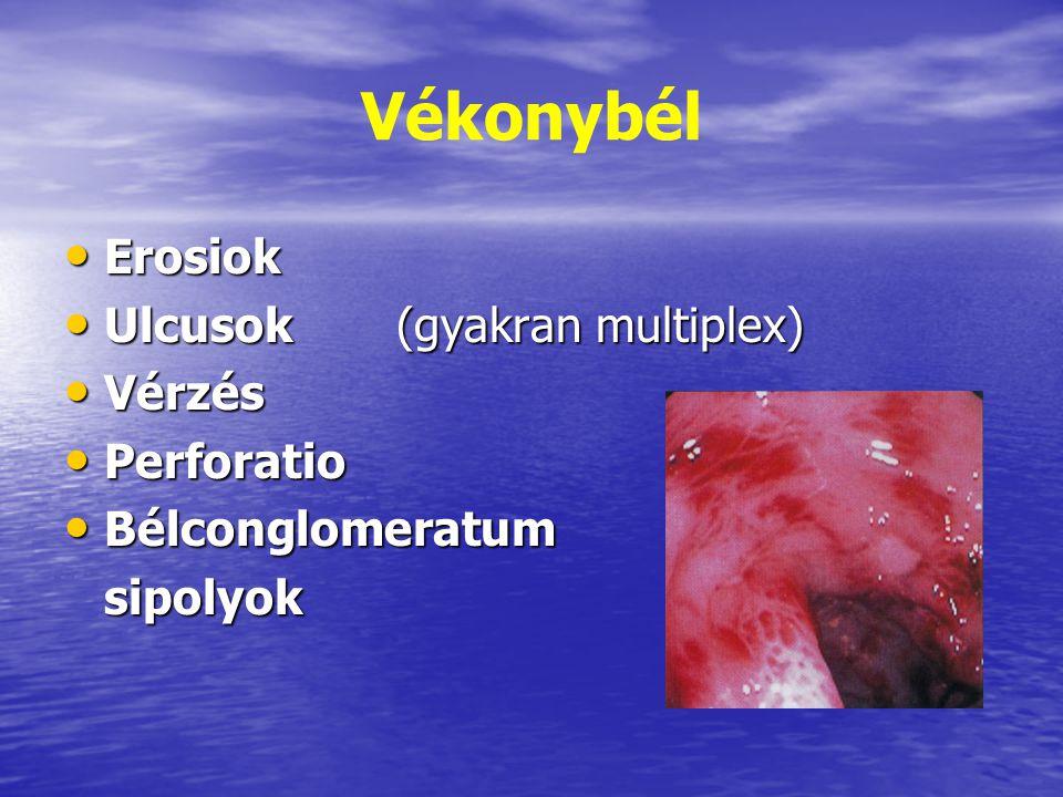 Vékonybél Erosiok Ulcusok (gyakran multiplex) Vérzés Perforatio