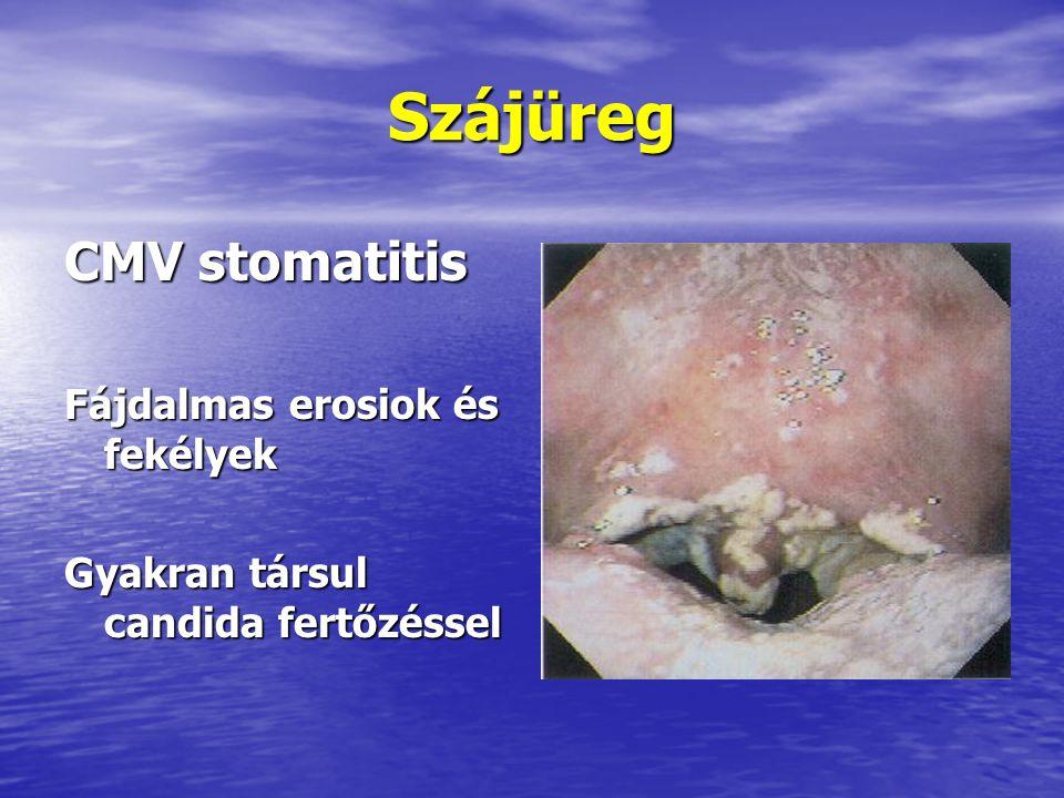 Szájüreg CMV stomatitis Fájdalmas erosiok és fekélyek