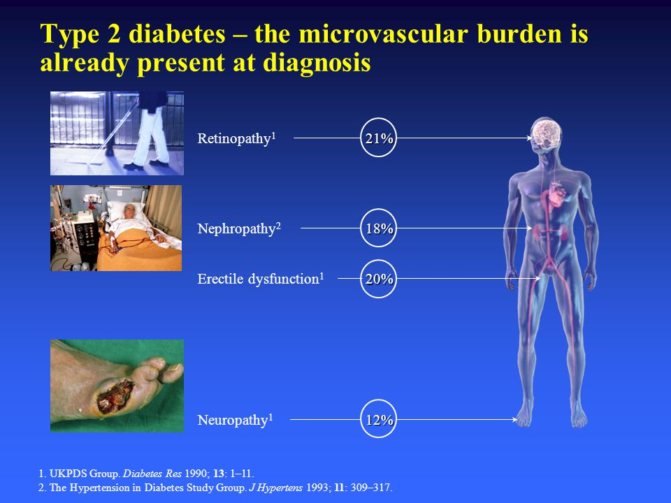 Type 2 diabetes – the microvascular burden is already present at diagnosis