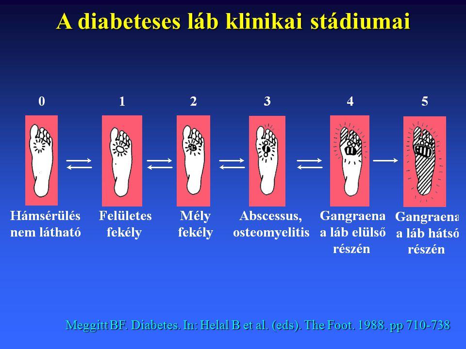 A diabeteses láb klinikai stádiumai