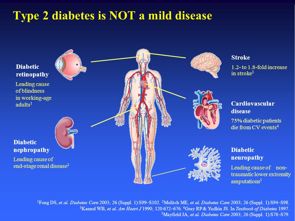 Type 2 diabetes is NOT a mild disease