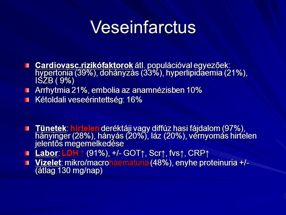 Veseinfarctus Cardiovasc.rizikófaktorok átl. populációval egyezőek: hypertonia (39%), dohányzás (33%), hyperlipidaemia (21%), ISZB ( 9%)