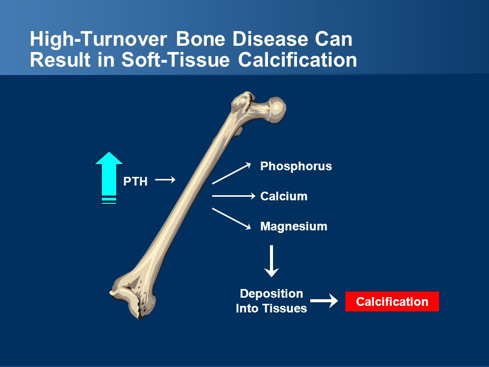 High-Turnover Bone Disease Can Result in Soft-Tissue Calcification